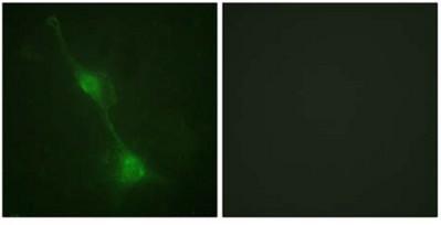 Immunocytochemistry/ Immunofluorescence - Ataxin 1 antibody (ab110833)
