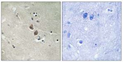 Immunohistochemistry (Formalin/PFA-fixed paraffin-embedded sections) - NPTN antibody (ab110836)