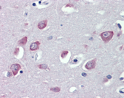 Immunohistochemistry (Formalin/PFA-fixed paraffin-embedded sections) - TRPC1 antibody (ab110837)