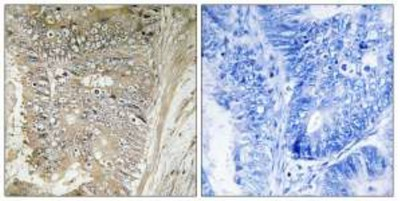 Immunohistochemistry (Formalin/PFA-fixed paraffin-embedded sections) - RPL37A antibody (ab110838)