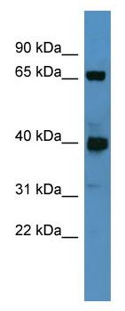Western blot - GALNT11 antibody (ab110861)