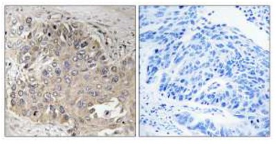 Immunohistochemistry (Formalin/PFA-fixed paraffin-embedded sections) - Spectrin beta 5 antibody (ab110867)