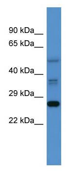 Western blot - COMMD2 antibody (ab110893)
