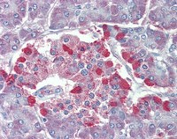 Immunohistochemistry (Formalin/PFA-fixed paraffin-embedded sections) - TRPM2 antibody (ab110895)