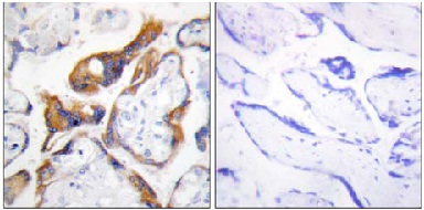 Immunohistochemistry (Formalin/PFA-fixed paraffin-embedded sections) - TSSC3 antibody (ab110935)