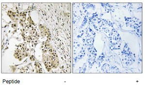 Immunohistochemistry (Formalin/PFA-fixed paraffin-embedded sections) - TAGAP antibody (ab110940)