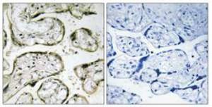 Immunohistochemistry (Formalin/PFA-fixed paraffin-embedded sections) - MRPL42 antibody (ab110942)