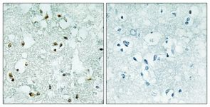 Immunohistochemistry (Formalin/PFA-fixed paraffin-embedded sections) - ELAC2 antibody (ab110953)