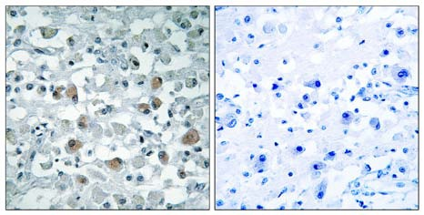 Immunohistochemistry (Formalin/PFA-fixed paraffin-embedded sections) - EIF1AY antibody (ab110966)