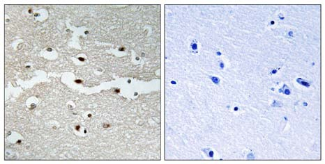 Immunohistochemistry (Formalin/PFA-fixed paraffin-embedded sections) - BRCA2 antibody (ab110967)