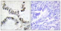 Immunohistochemistry (Formalin/PFA-fixed paraffin-embedded sections) - Anti-HMGXB3 antibody (ab110976)