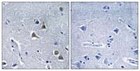 Immunohistochemistry (Formalin/PFA-fixed paraffin-embedded sections) - ARRDC2 antibody (ab110981)