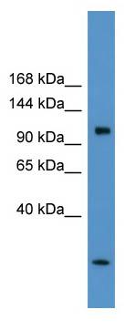 Western blot - CLCN1 antibody (ab110985)