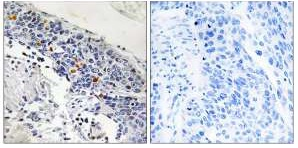 Immunohistochemistry (Formalin/PFA-fixed paraffin-embedded sections) - ZNF600 antibody (ab110989)