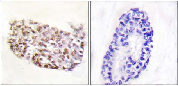 Immunohistochemistry (Formalin/PFA-fixed paraffin-embedded sections) - NFAT5 antibody (ab110995)
