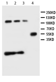 Western blot - p27 KIP 1 antibody (ab111010)