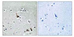 Immunohistochemistry (Formalin/PFA-fixed paraffin-embedded sections) - ATP6V1H  antibody (ab111021)