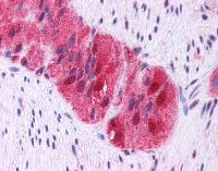 Immunohistochemistry (Formalin/PFA-fixed paraffin-embedded sections) - GRB2 antibody (ab111031)