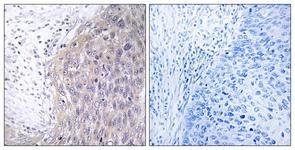 Immunohistochemistry (Formalin/PFA-fixed paraffin-embedded sections) - POLG2 antibody (ab111032)