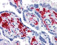 Immunohistochemistry (Formalin/PFA-fixed paraffin-embedded sections) - DDX58 antibody (ab111037)