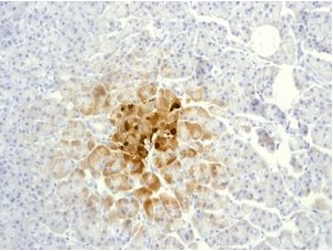Immunohistochemistry (Formalin/PFA-fixed paraffin-embedded sections) - Somatostatin 28 antibody [EPR3360(2)] (ab111050)