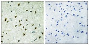 Immunohistochemistry (Formalin/PFA-fixed paraffin-embedded sections) - MAD4 antibody (ab111062)