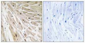 Immunohistochemistry (Formalin/PFA-fixed paraffin-embedded sections) - RPL22 antibody (ab111073)
