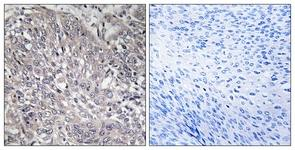 Immunohistochemistry (Formalin/PFA-fixed paraffin-embedded sections) - ITPR1 antibody (ab111087)
