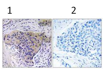 Immunohistochemistry (Formalin/PFA-fixed paraffin-embedded sections) - SLC30A2 antibody (ab111114)
