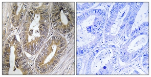 Immunohistochemistry (Formalin/PFA-fixed paraffin-embedded sections) - Cystatin SA antibody (ab111115)