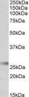Western blot - Anti-HLA-DQA2 antibody (ab111120)