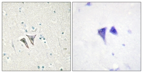 Immunohistochemistry (Formalin/PFA-fixed paraffin-embedded sections) - Activin A Receptor Type IC antibody (ab111121)