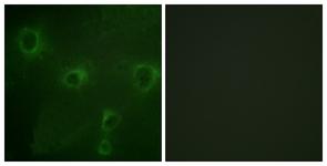 Immunocytochemistry/ Immunofluorescence - Kv2.1 antibody (ab111122)
