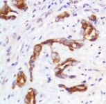 Immunohistochemistry (Formalin/PFA-fixed paraffin-embedded sections) - Slit2 antibody (ab111128)