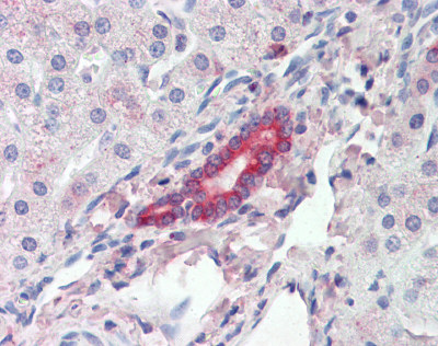 Immunohistochemistry (Formalin/PFA-fixed paraffin-embedded sections) - ROR1 antibody (ab111174)