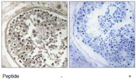 Immunohistochemistry (Formalin/PFA-fixed paraffin-embedded sections) - MRPS5 antibody (ab111184)