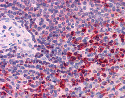 Immunohistochemistry (Formalin/PFA-fixed paraffin-embedded sections) - TXNRD1 antibody (ab111186)