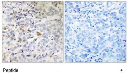Immunohistochemistry (Formalin/PFA-fixed paraffin-embedded sections) - RABL5 antibody (ab111187)
