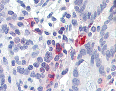 Immunohistochemistry (Formalin/PFA-fixed paraffin-embedded sections) - TNFAIP3 antibody (ab111192)