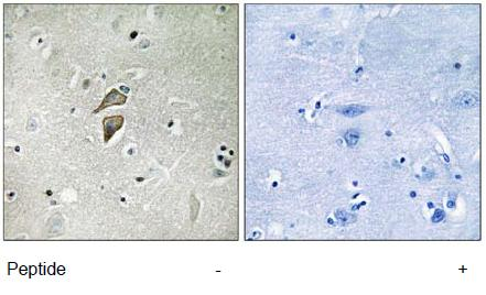 Immunohistochemistry (Formalin/PFA-fixed paraffin-embedded sections) - RNF149 antibody (ab111193)