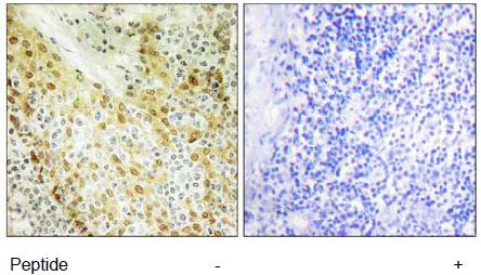 Immunohistochemistry (Formalin/PFA-fixed paraffin-embedded sections) - HIRA antibody (ab111196)
