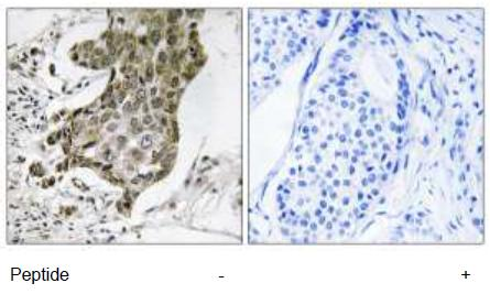 Immunohistochemistry (Formalin/PFA-fixed paraffin-embedded sections) - RABEP1 antibody (ab111199)