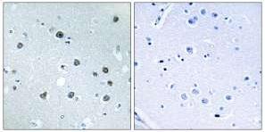 Immunohistochemistry (Formalin/PFA-fixed paraffin-embedded sections) - MYO1D antibody (ab111205)