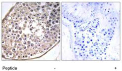 Immunohistochemistry (Formalin/PFA-fixed paraffin-embedded sections) - Dynein light chain antibody (ab111216)