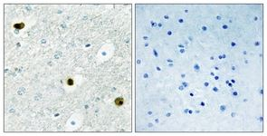 Immunohistochemistry (Formalin/PFA-fixed paraffin-embedded sections) - TPD52 antibody (ab111228)