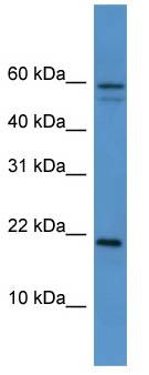 Western blot - cvHSP antibody (ab111233)