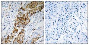 Immunohistochemistry (Formalin/PFA-fixed paraffin-embedded sections) - USP32 antibody (ab111234)