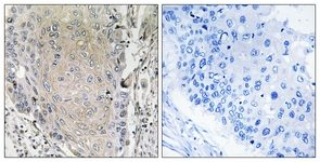 Immunohistochemistry (Formalin/PFA-fixed paraffin-embedded sections) - CBLN3 antibody (ab111249)