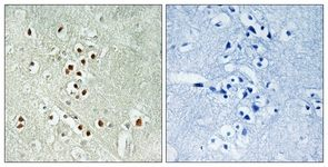 Immunohistochemistry (Formalin/PFA-fixed paraffin-embedded sections) - GADD45GIP1 antibody (ab111254)
