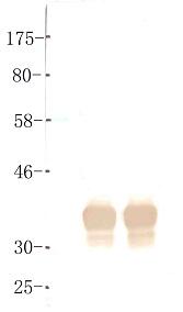 Western blot - Anti-BORIS antibody [KT72] (ab111255)